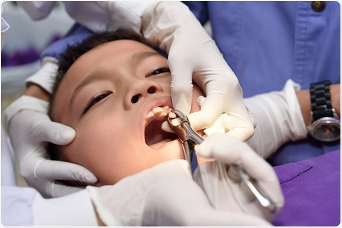 What Are the Complications of a Tooth Removal